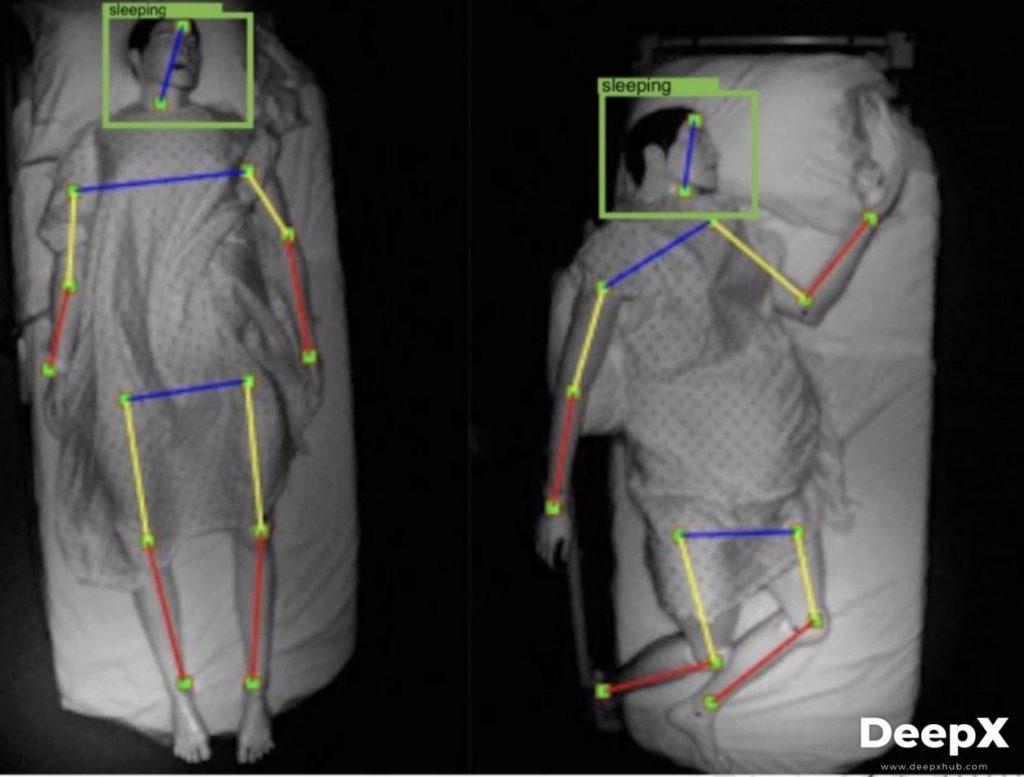 Computer Vision Healthcare Pose Estimation Example